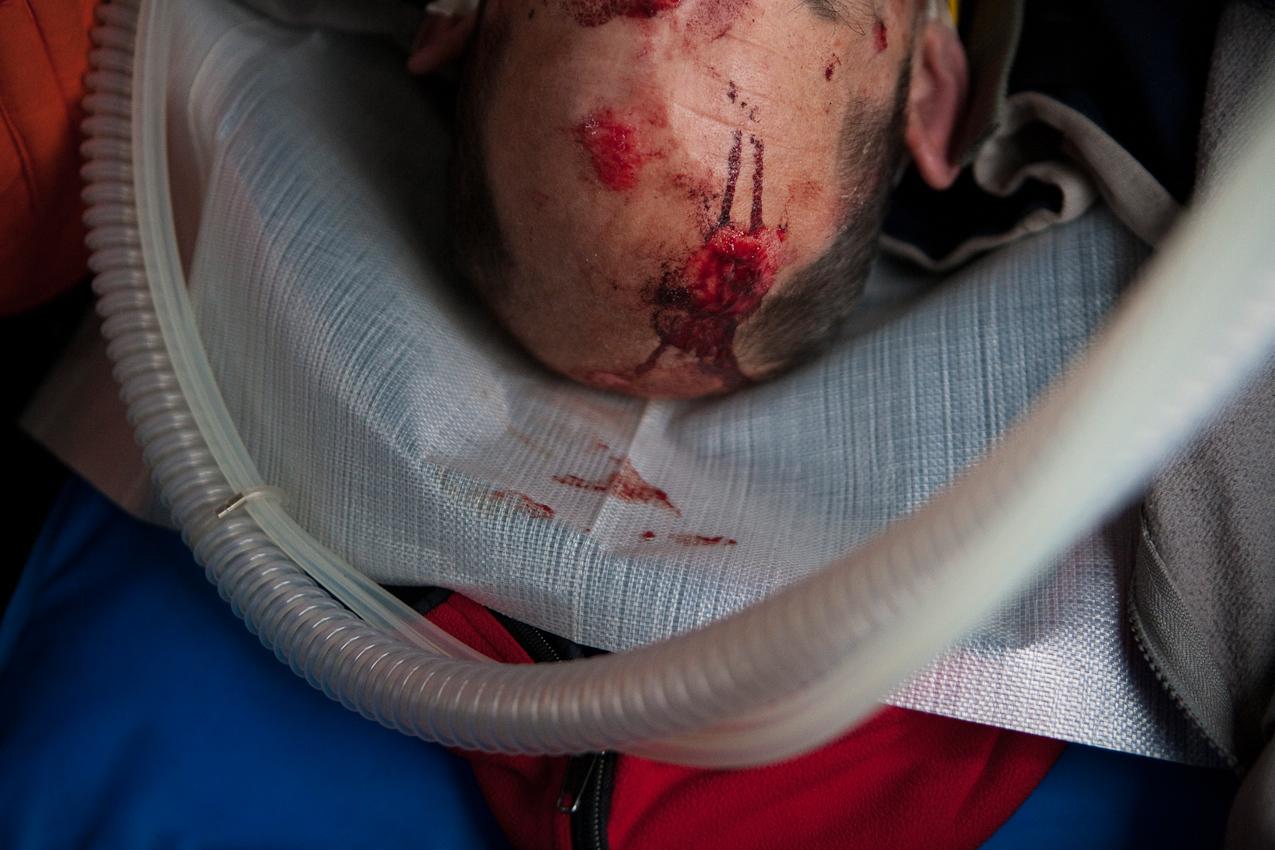 Kopfverletzungen bei einem Polytrauma-Patienten nach einem schweren Verkehrsunfall.