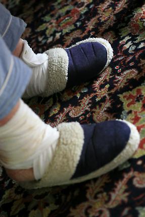 Zu sehen sind die verbundenen Knöchel von Hedwig Hansen (86 Jahre) in Tönning. Sie konnte die Nacht nicht schlafen, weil die Knöchel schmerzten. Zur Linderung ist sie aufgestanden und hat beide Füße verbunden.